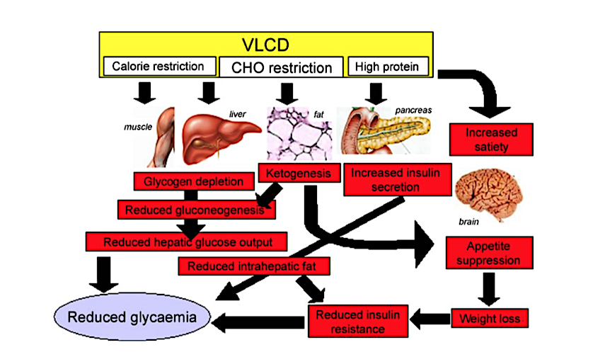 CrossFit | Effects and Clinical Potential of Very-Low-Calorie Diets (VLCDs)  in Type 2 Diabetes Effect of low-carbohydrate diet, high-fat diet on older adults