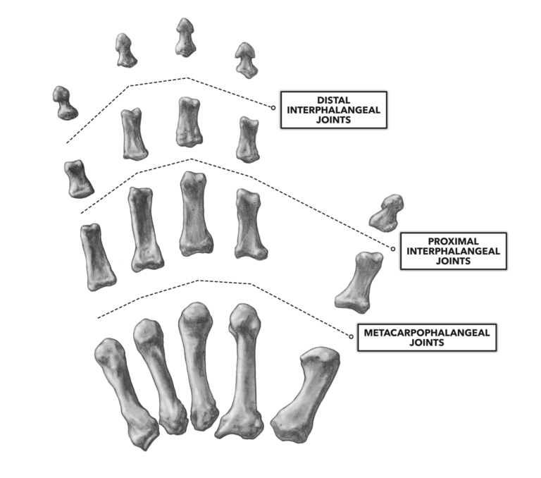 interphalangeal and metacarpophalangeal