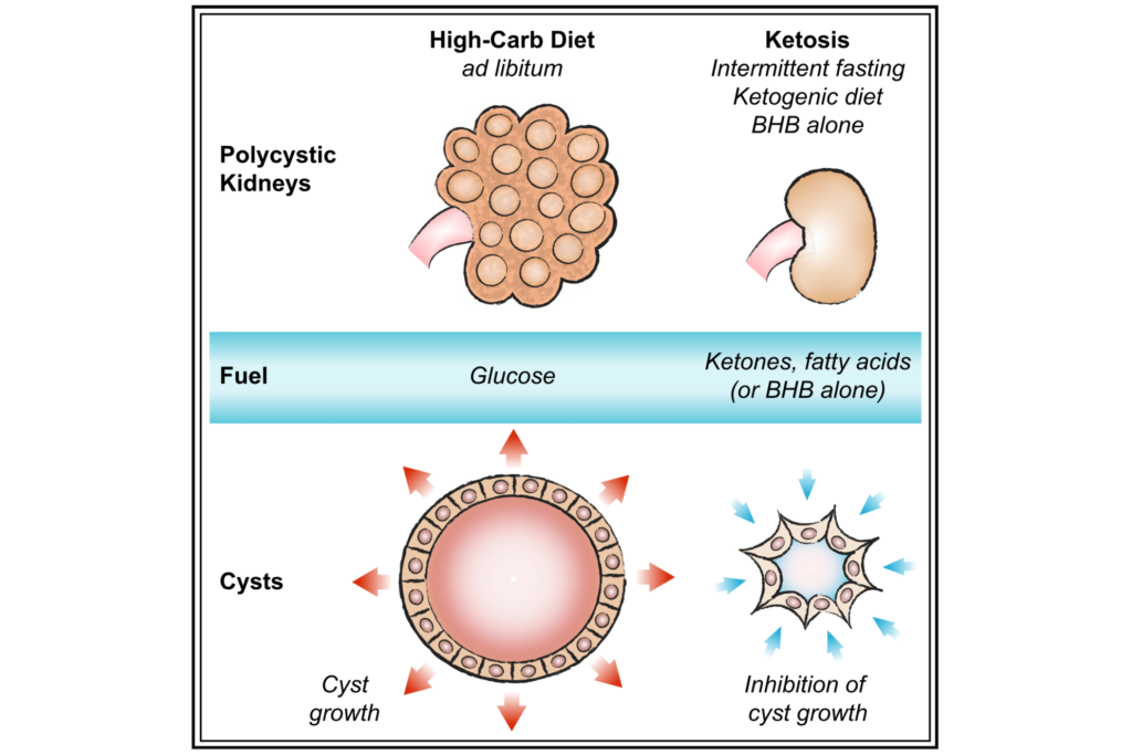Ketosis Ameliorates Renal Cyst Growth in Polycystic Kidney Disease