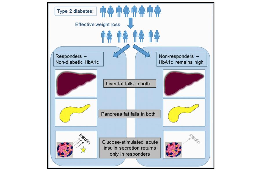dibetes remission